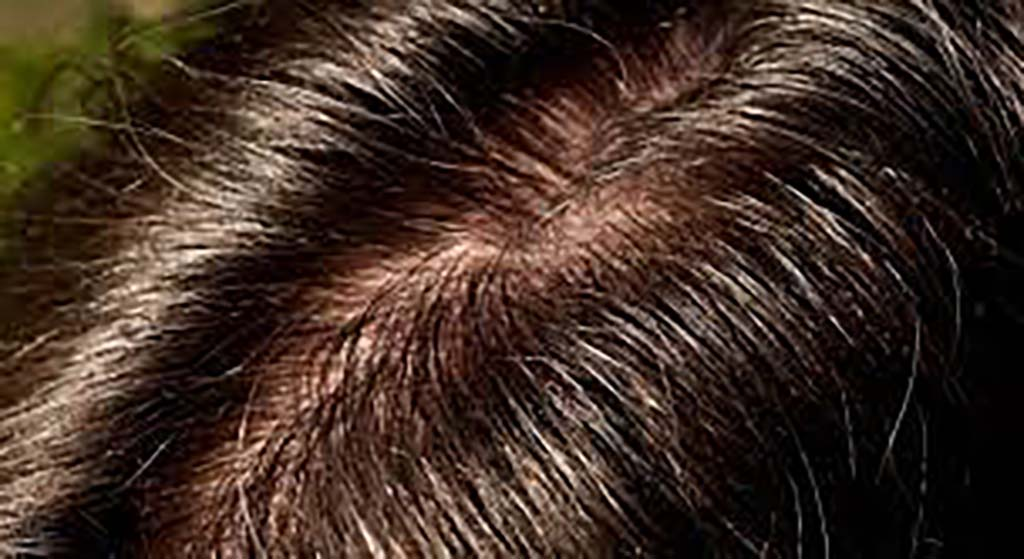 Oily Scalp Causes & Solutions
